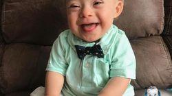 Le bébé Gerber 2018 est le 1er avec le syndrome de