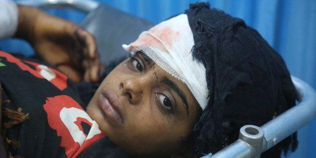 Le 9 juin 2018, au Yémen, une jeune fille blessée reçoit des soins à l'hôpital Althawra, à