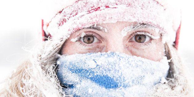 L'allergie au froid existe et c'est une vraie