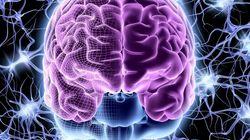 Un cerveau perdu entraîne l'ouverture d'une