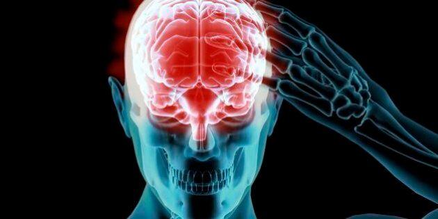 Un traitement expérimental contre Alzheimer donne des résultats
