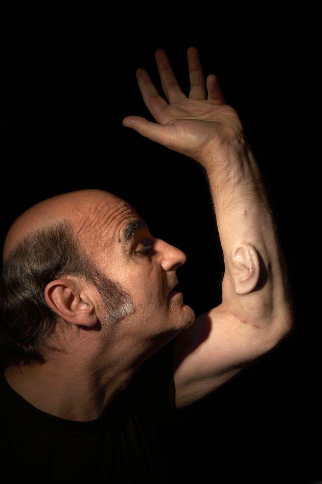 L'artiste australien Stelarc s'est fait pousser une oreille dans l'avant-bras gauche