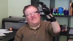 Il préfère une prothèse imprimée en 3D pour 50 dollars au modèle à 42 000 dollars