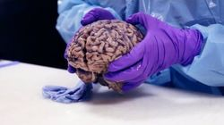 Is Emerging Brain Technology Changing