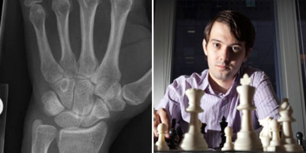 Martin Shkreli Said He Fractured His Wrist Punching A Wall Because Of Bernie