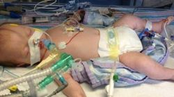 Boy With Meningitis Who Had Life-Support Turned Off Makes Miraculous