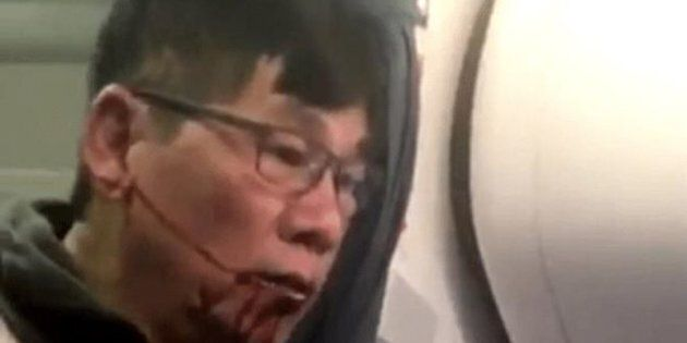 Dr David Dao, who declined to give up his seat on a United Airlines flight, recently sued the