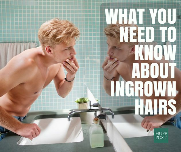 Everything You Need To Know About Ingrown