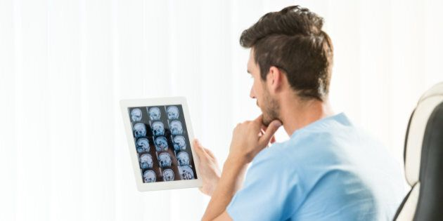 Male doctor studying an MRI scan of the brain on digital tablet. Actual scan of the young man's brain...