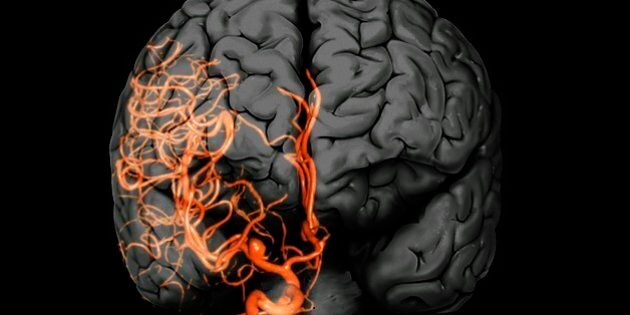 Brain aneurysm. 3D computed tomography (CT) angiogram coupled with a magnetic resonance imaging (MRI) scan of the brain of a 38-year-old, showing a large aneurysm (bright, lower centre) of the right internal carotid artery. An aneurysm is the ballooning of an artery due to weakening of the artery wall.