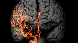 Brain Aneurysms Aren't Always As Sudden As They