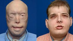 Most Extensive Face Transplant Allows Firefighter To