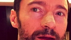 Hugh Jackman Reveals He Was Treated For Skin Cancer For The Fifth