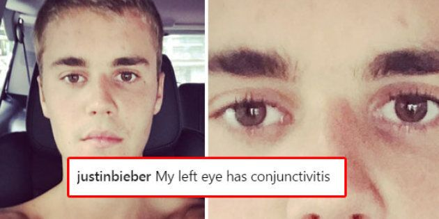 Justin Bieber's Left Eye Has Conjunctivitis, And He Wanted You To