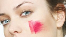 Rosacea: Why Red, Sensitive Skin Occurs, And How To Treat