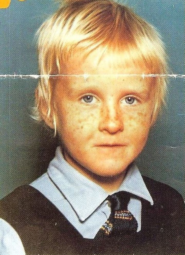 Michele Joyce during treatment aged 5.