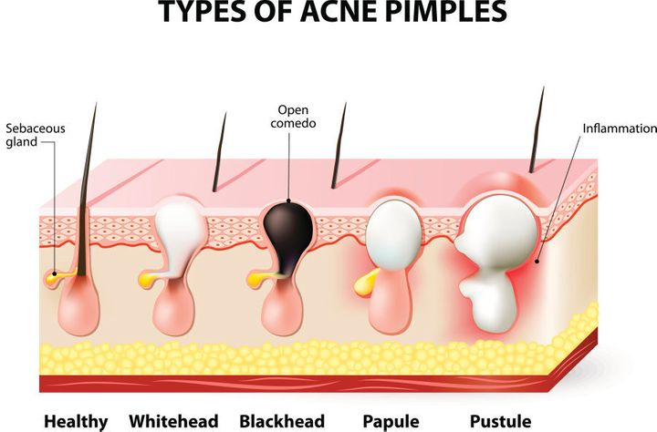 Types of acne pimples.