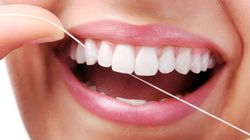 Do You Really Need To Floss? And What Happens If You