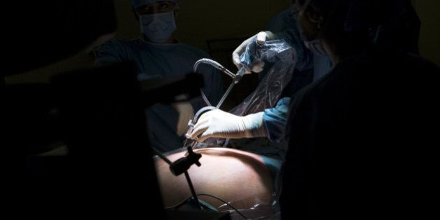 Photo Essay At The Hospital Of Meaux 77, France. Visceral And Digestive Surgery. Surgery Of Obesity Sleeve...