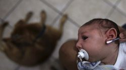 Scientists Confirm Zika Virus Causes Birth Defect