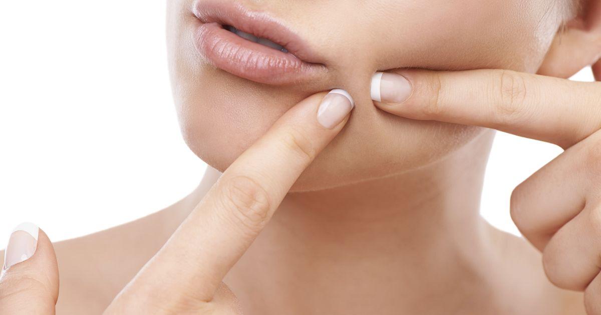 Image result for don't pop pimples
