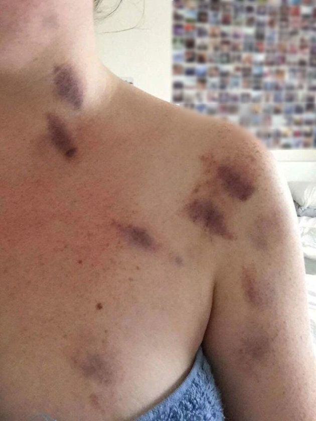The photo posted online, claiming to show the injuries caused in the alleged assault
