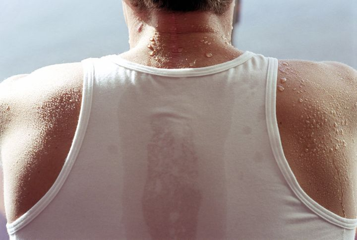 Sweat is a common by-product of exercise, but it can also trigger 'sweating hives'.
