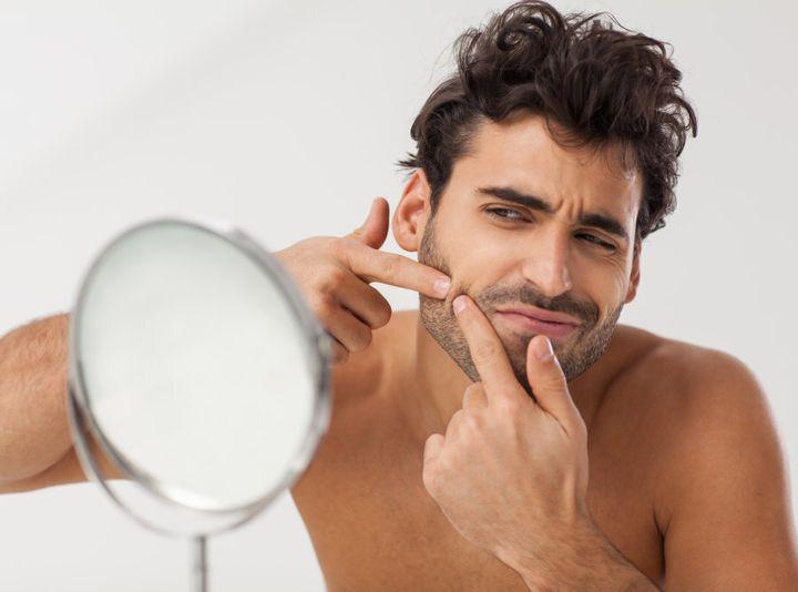 Testosterone causes blackheads. Who knew?