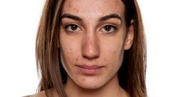 Adult Acne: When Your Skin Just Won't Grow