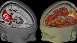 Behold, The First-Ever Brain Scans Of LSD's Mind-Altering