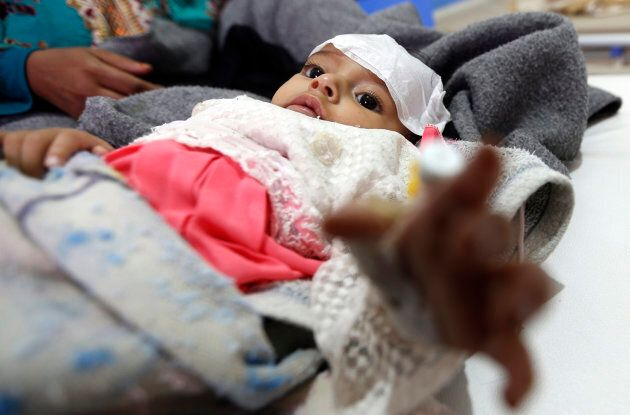 A Yemeni infant suspected of being infected with cholera receives treatment at Sabaeen Hospital in
