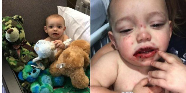Mother Warns Parents After Her Baby Is Badly Infected With