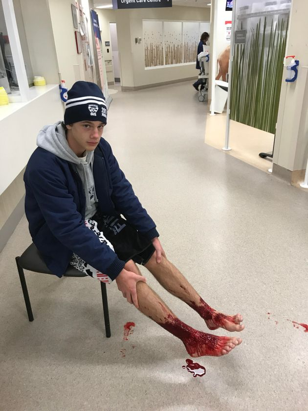 Doctors were baffled by the 16-year-old's bleeding