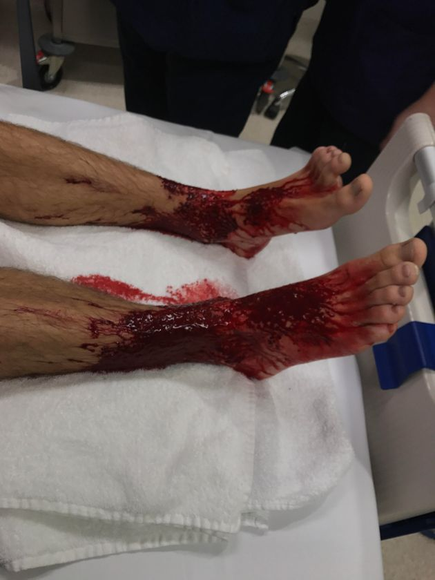 Teen Emerges From Beach With Bloodied Legs After A Quick