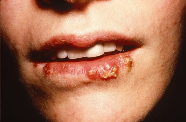 Herpes simplex type one hangs around the mouth, like this, while type two in the