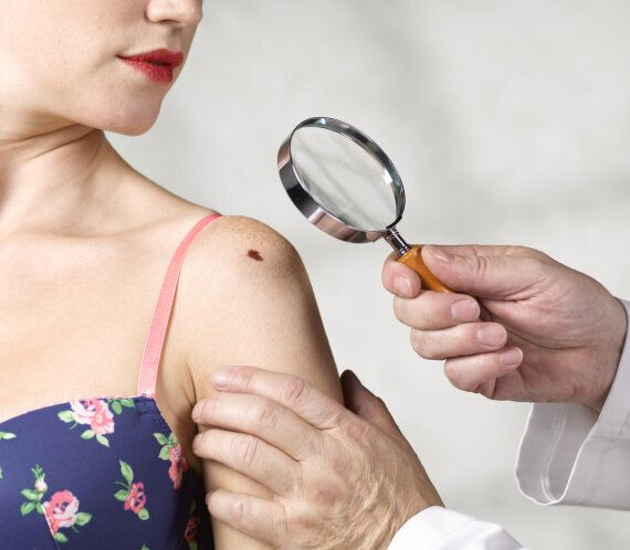 Skin Cancer Risk May Be Lowered By B3 Vitamin Tablets, Researchers