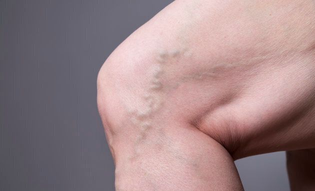 This is what a varicose vein can look
