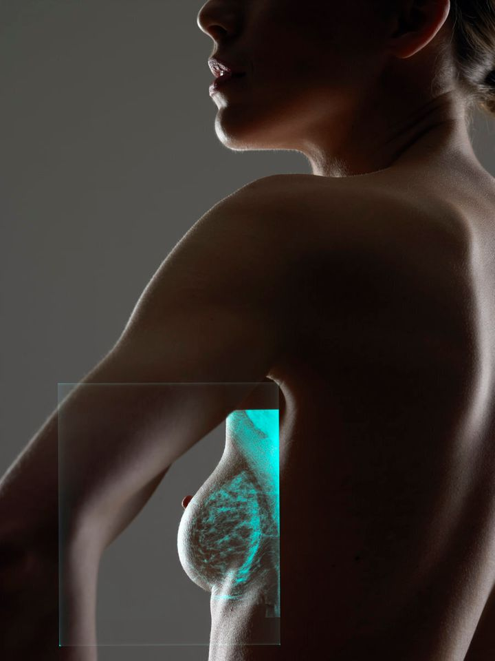 Women with augmentation implants can and should undergo mammograms.