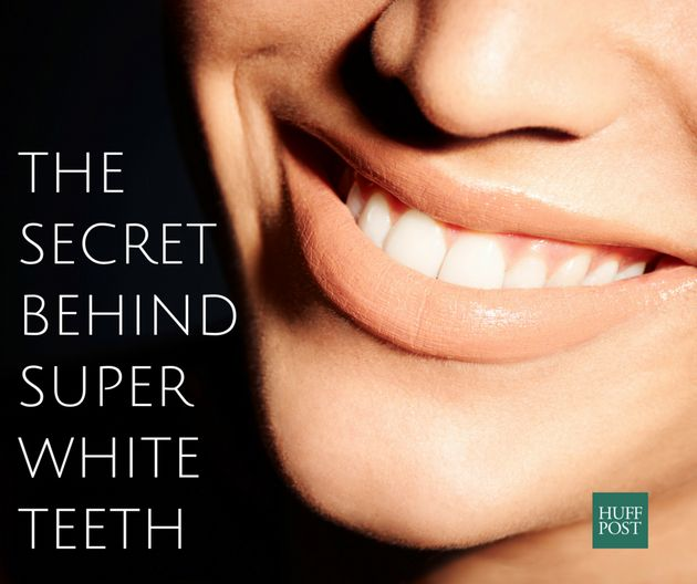 Teeth Whitening: The Real