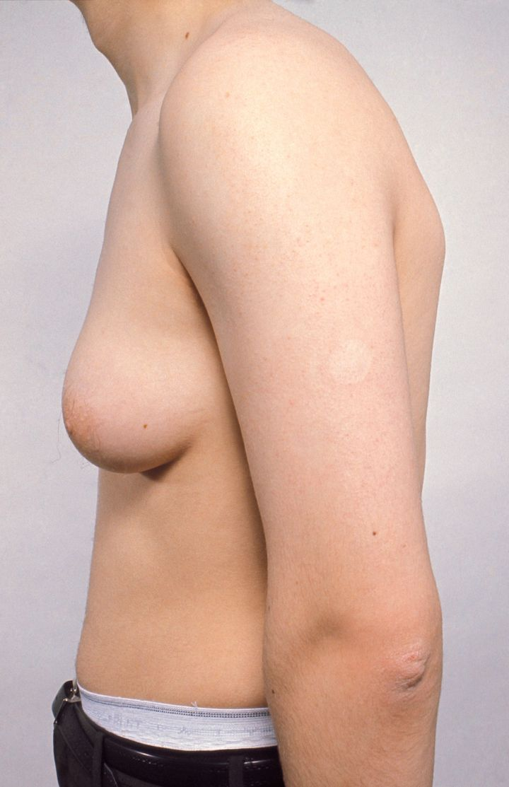 An example of gynaecomastia in a 17 year old male.