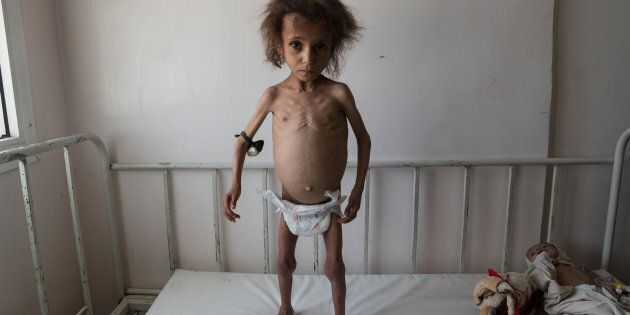 AL JOUMHOURI HOSPITAL, YEMEN - 24 APRIL 2017: Batool Ali, aged 6, stands on a hospital bed. Batool suffers...