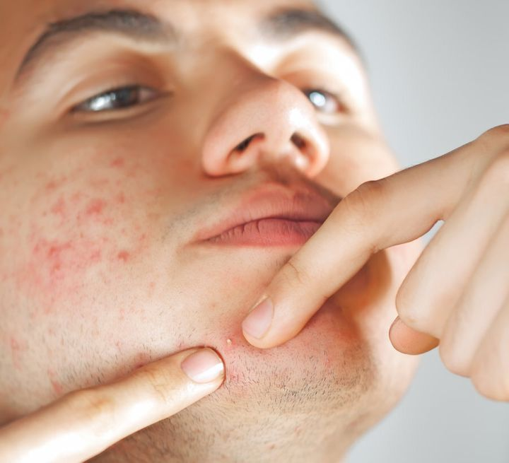 Acne is the most common of skin diseases, affecting 85 percent of Australians aged 15-24 years old.