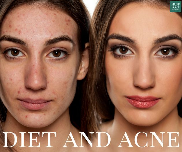 Have Acne? You Might Want To Look At Your