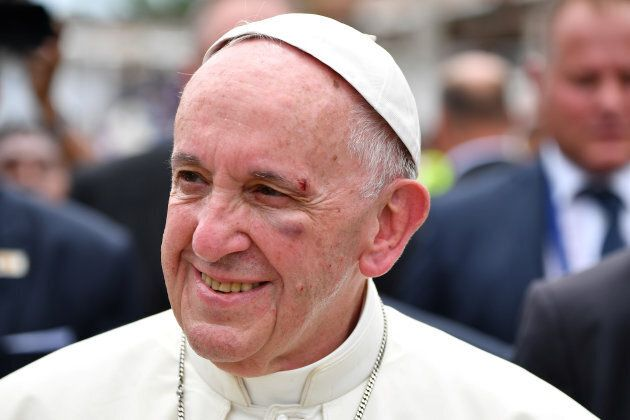 Pope Francis shows a bruise around his left eye and eyebrow caused by an accidental hit against the popemobile's...