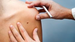 Australian Researchers Believe They Can Stop Melanoma In Its