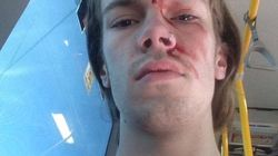 Kevin Rudd's Godson Allegedly Assaulted In Homophobic
