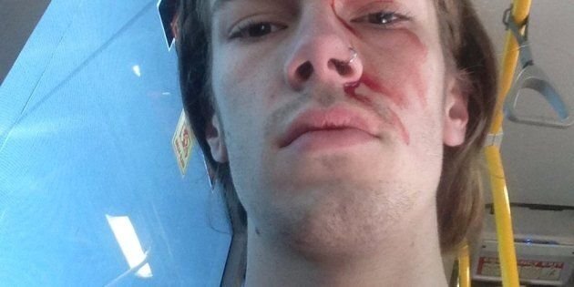 Sean, Kevin Rudd's godson, after the alleged attack.