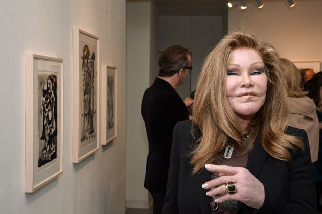 Jocelyn Wildenstein: a living example of going too