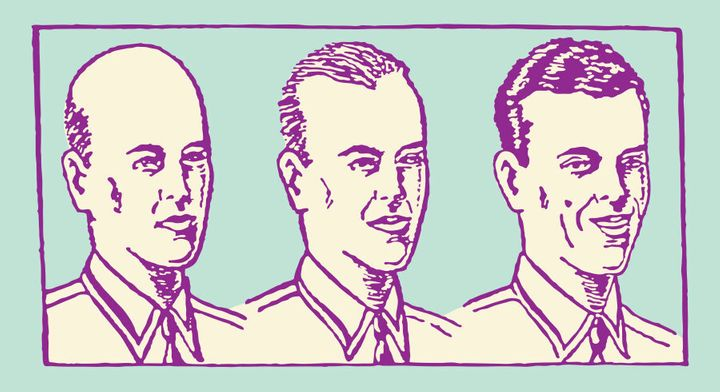 A helpful diagram of a man in the varying stages of baldness.