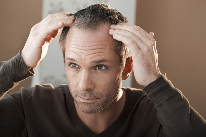 In men, hair loss is often first noticeable around the temples.